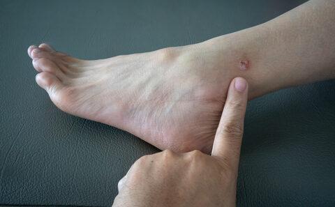 ha a jobb kéz vállízülete fáj fájdalom és ropogás a váll ízületeiben