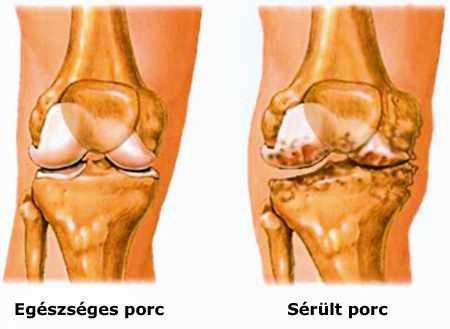 a térd súlyosbodása ízületi kezelés után térd fájó fájdalma