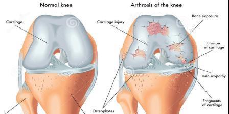 Arthrosis deformálása: tünetek és kezelés - Homorú-domború lencse
