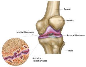 különféle fájdalmak a térdben lupus erythematosus ízületi kezelés