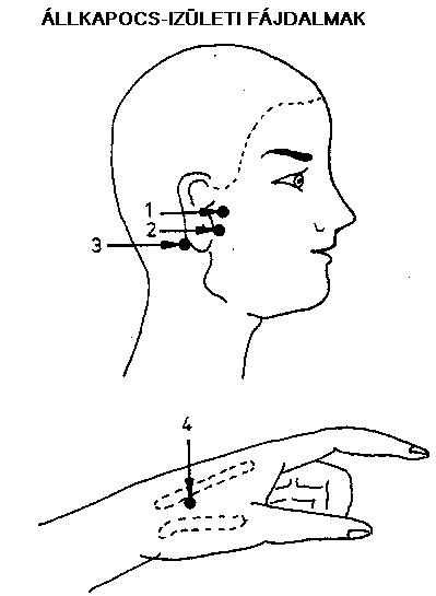 ízületi fájdalom a fülben