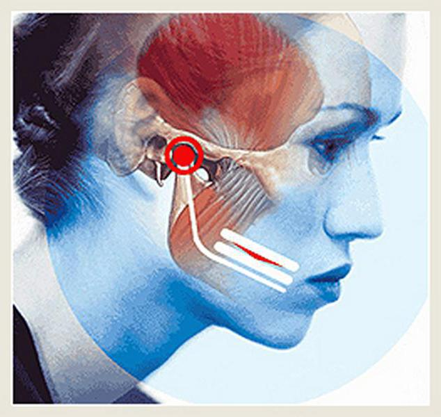 az arcízület fájdalmának okai