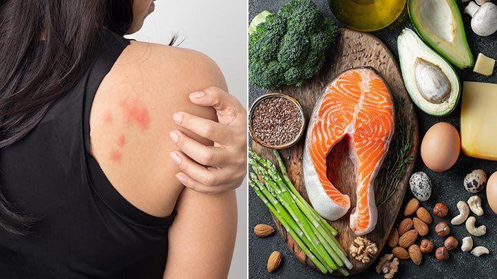 Pin by Paleomedicina Hungary on Videos | Rheumatoid arthritis, Arthritis, Ketogenic