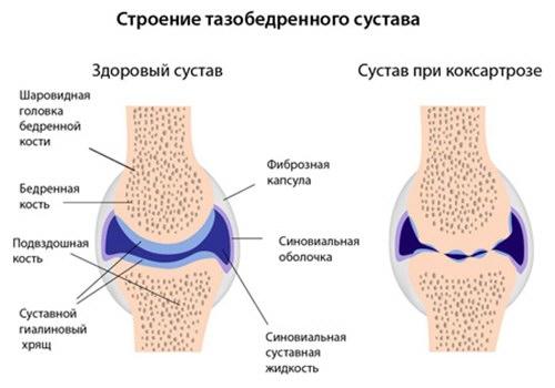 a bal láb 1 lábujjának ízületi gyulladása fájdalmat okoz a csípőízületben