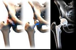 csípőízületi műtéti kezelés