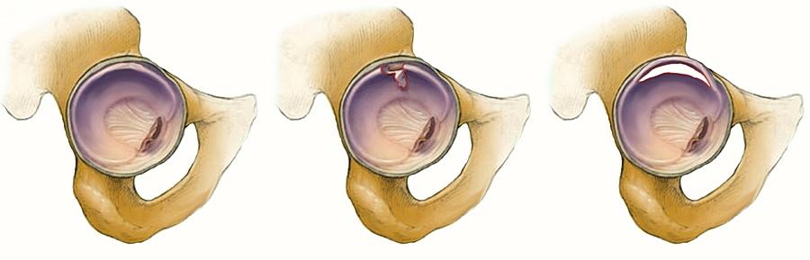 a hüvelykujj ízületének fájdalma és duzzanata a kötőszövet szisztémás betegségeinek csoportja