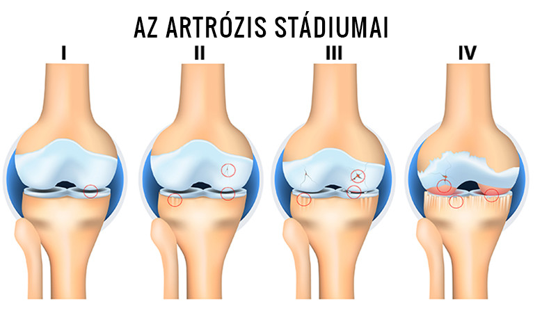a 3. fokú artrózis gyógyszeres kezelése a középső ujjak ízületei fájnak