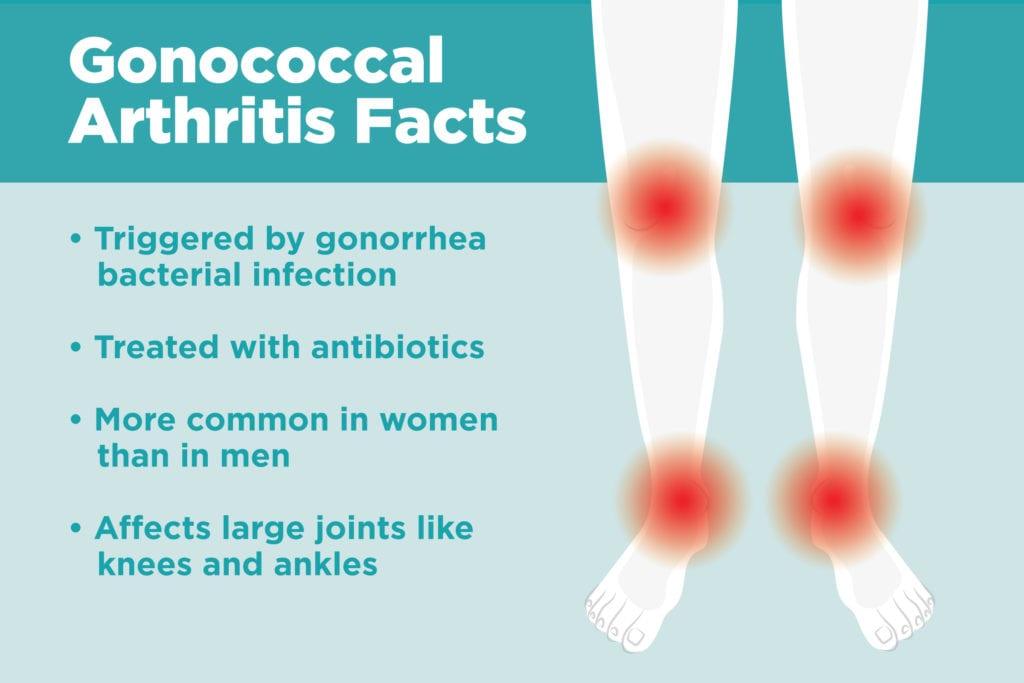 fájdalom a jobb láb ízületének kezelésében nem szteroid gyógyszerek osteochondrozishoz