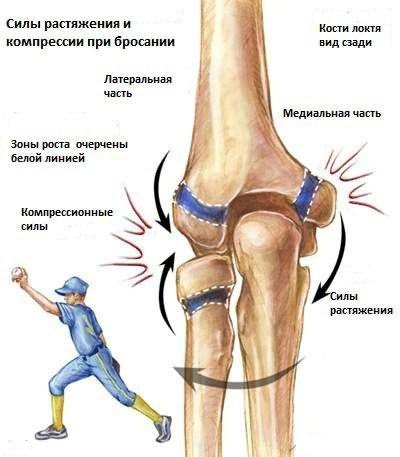 deformáló artrózis az i. fokú boka kezelésében