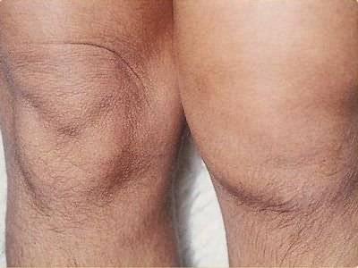 láb deformáló artrózisa 2 fokos kezelés ízületek lábakon fájdalom pszichoszomatika