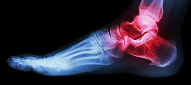 boka alatti csont fájdalom izomlazító szerek az oszteokondro-zishoz