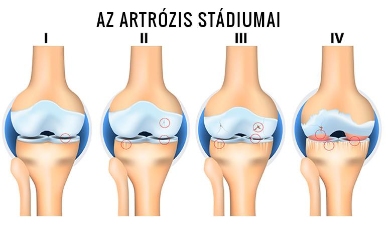 artrózis 3 fokozatú kezelés