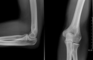 mi a csípőízület artrózisával 911 krém ízületekhez