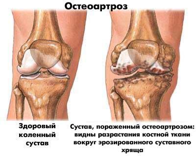 2. szakasz deformálja a térd osteoarthritisét