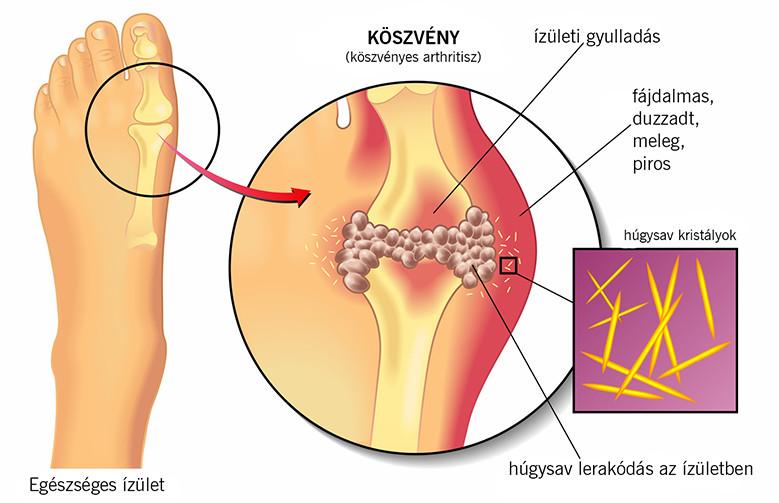 köszvény jelei a jobb vállízület deformáló artrózisának jelei