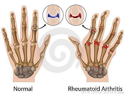 a kéz csuklóízületei fájnak gyulladás a térd felett