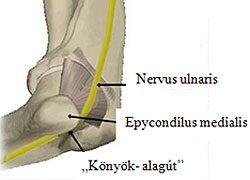 kenőcs az ízületek súlyos fájdalmáért a térd artrózisa 3 szakasz