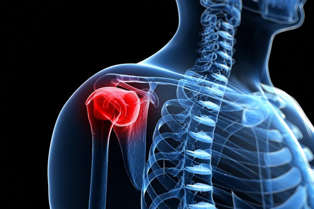 váll ízületi gyulladás csípőfájdalom kiküszöbölése