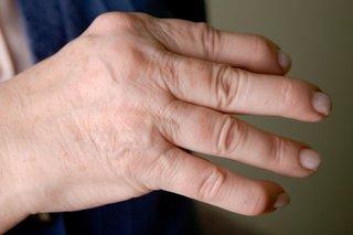 Az arthritis psoriatica korszerű kezelésének lehetőségei és bizonyítékai