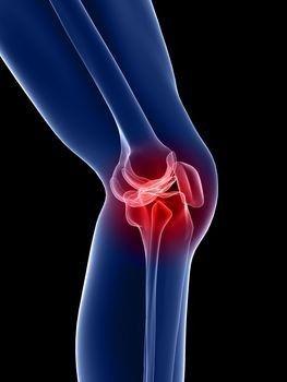 fájdalom a térd lágy szöveteiben