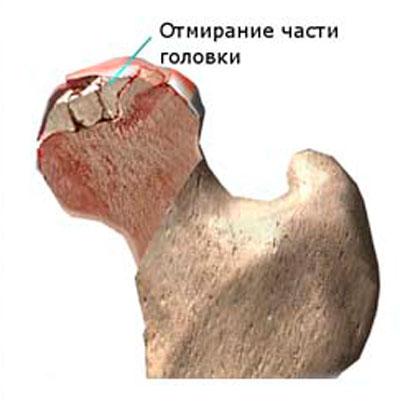 hogyan kell kezelni a csípőízület osteoporosisát