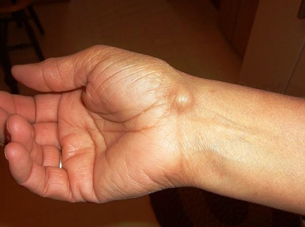 fájó lábízület kezelése
