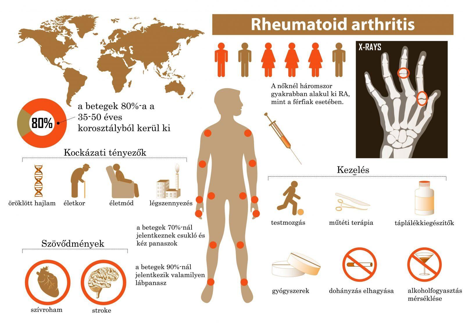 reuma kezdeti tünetei lábgörcsök ízületi fájdalom