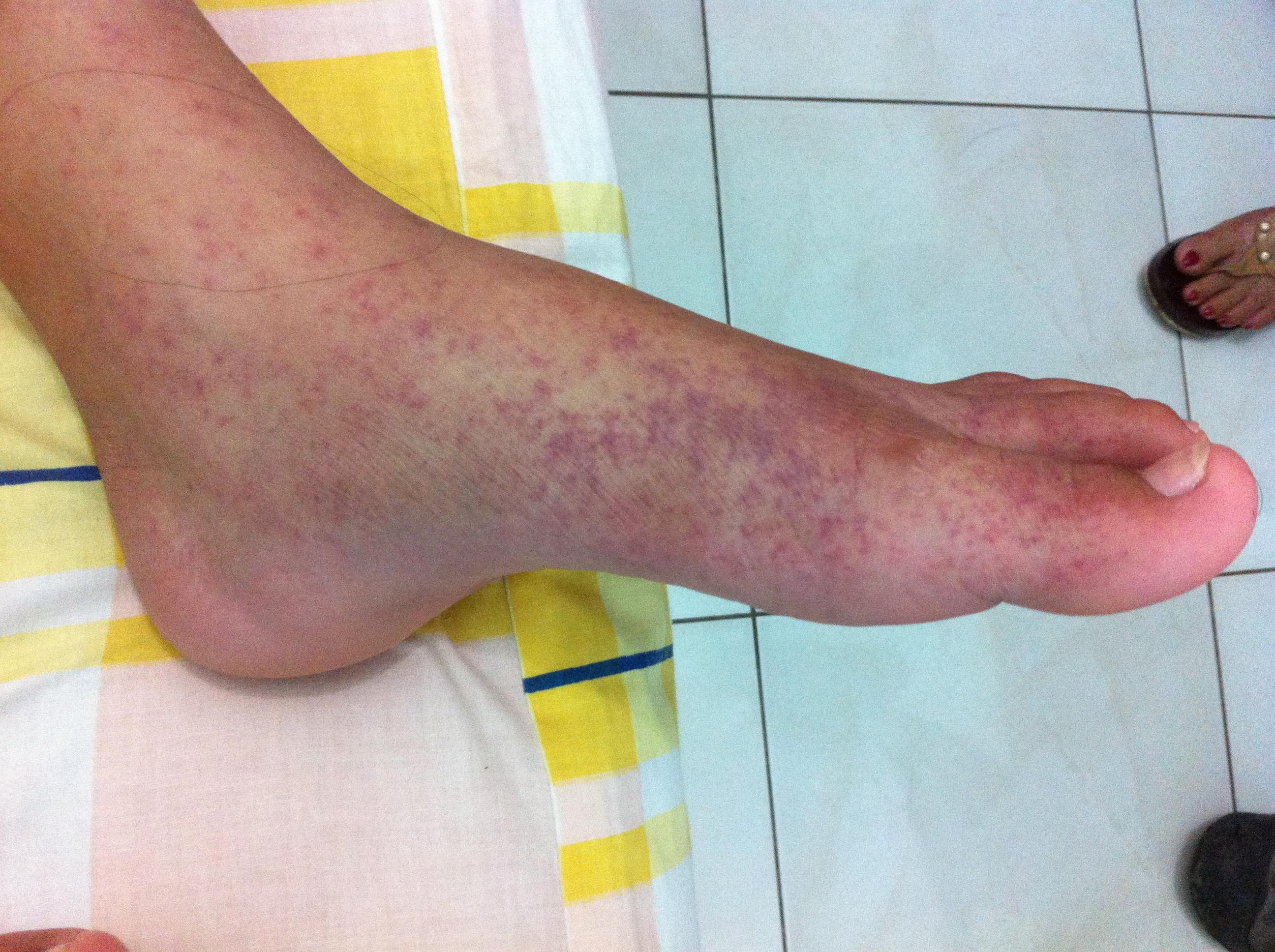 rheumatoid arthritis betegség kezelésére fájdalom a protézisízületben