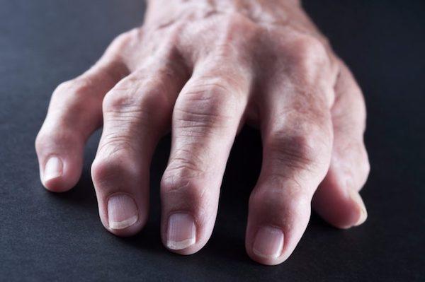 hüvelykujj csontbetegség