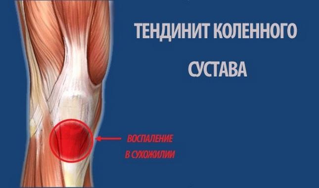 a térd duzzanatának fájdalmainak okai a lábujjak ízületi gyulladása hogyan kell kezelni