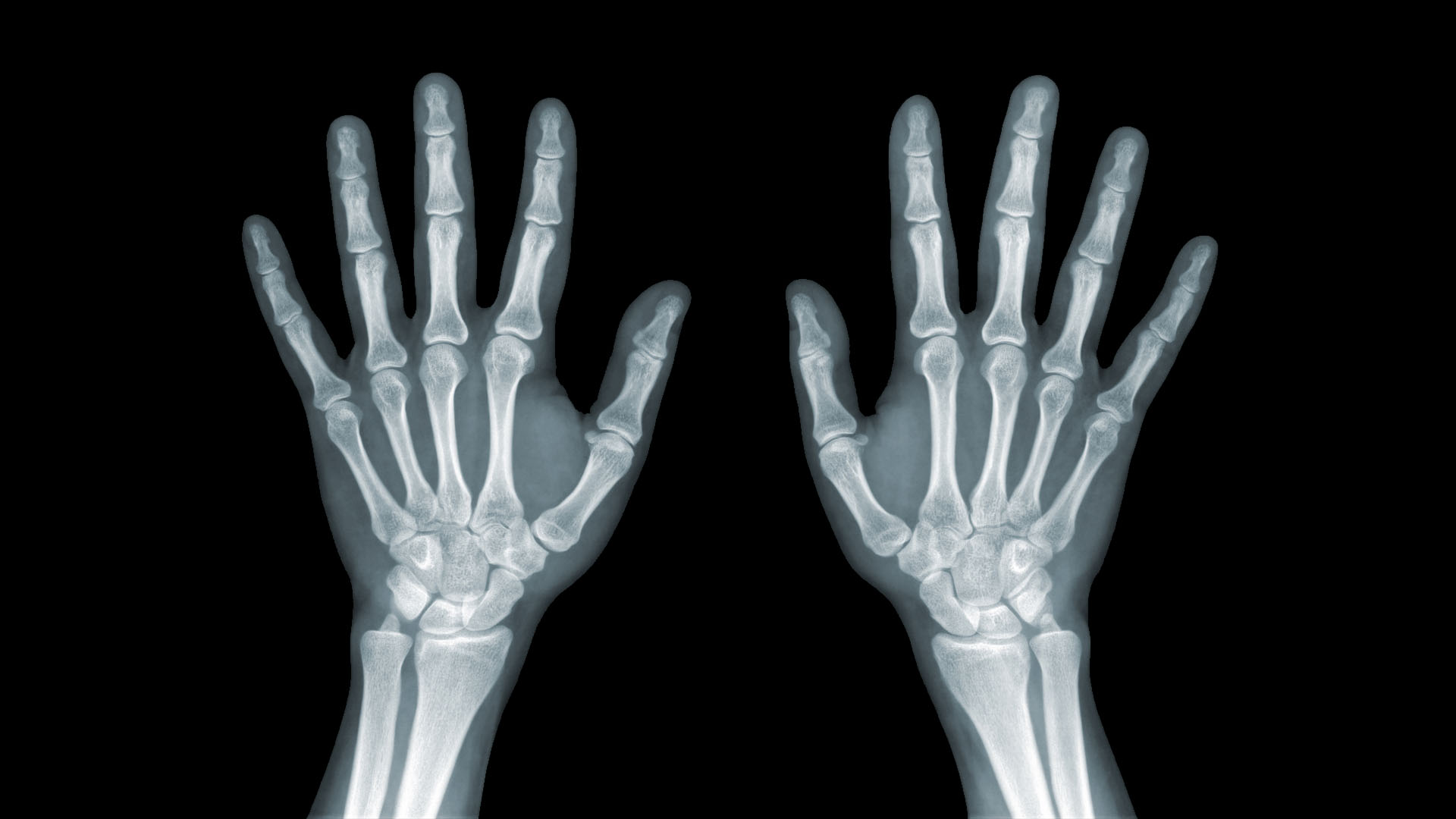 fájdalom a könyök ízület ligamentumában cukor ízületi fájdalmak esetén