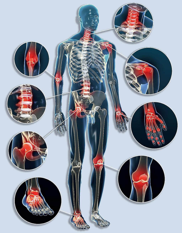 megkezdődik a csípő dysplasia kezelése hogyan lehet megnyugtatni az ízületek fájdalmát