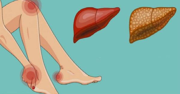 fájdalom a nagy lábujj ízületei izületi fájdalom homeopátia