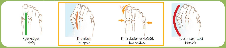 milyen gyógyszerek a nyaki gerinc csontritkulásának kezelésére kenőcsök a cervicothoracicus régió osteochondrozisához
