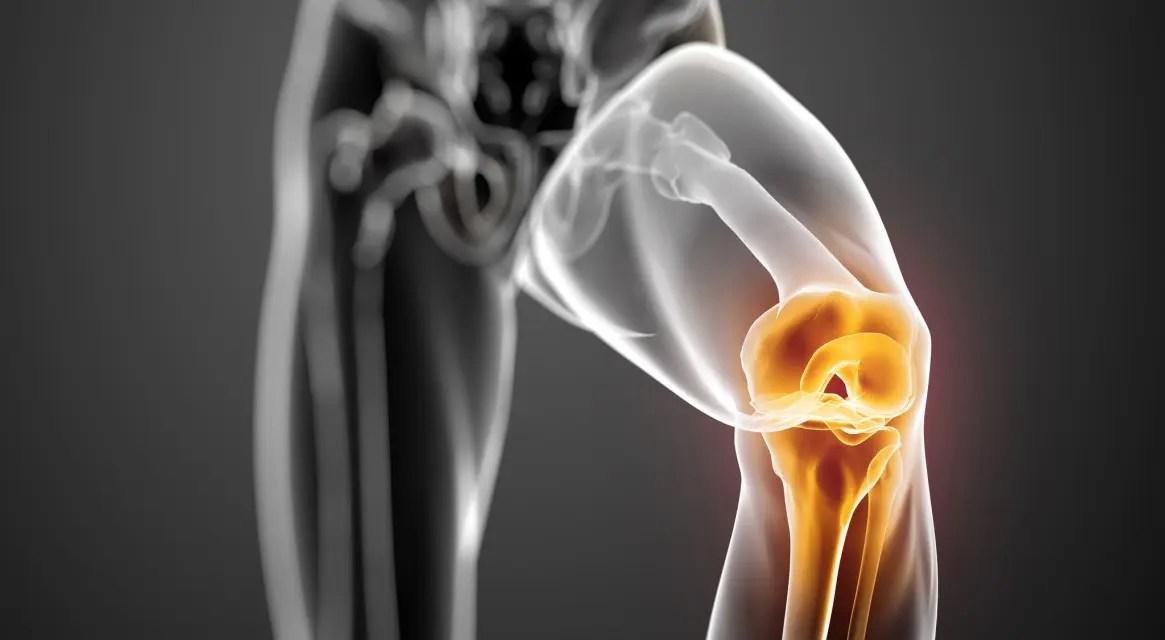 csípő sérülések ősszel térdízületi defartrosis 3 fokos kezelés