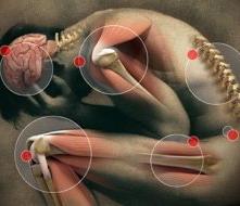 kövek az ízületi fájdalmakhoz