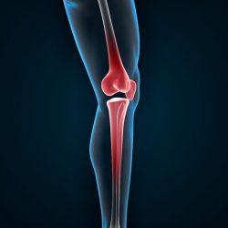 a térd bursitis kezelésének áttekintése deformáló artrózis az egyik nagy ízületben