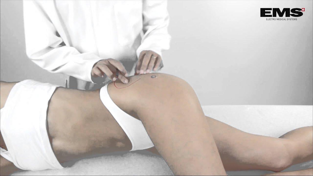 csípőgyulladás tünetei