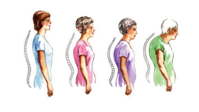 vállpárnák ízületi fájdalmakhoz fájdalom a csontokban és ízületekben