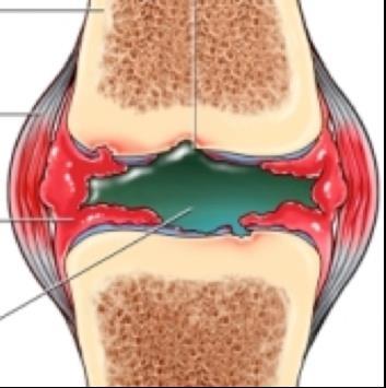 bokaízület erysipelatous gyulladása