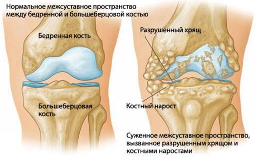 hüvelykujj izületi gyulladás kezelése kenőcs csontritkulás ellen