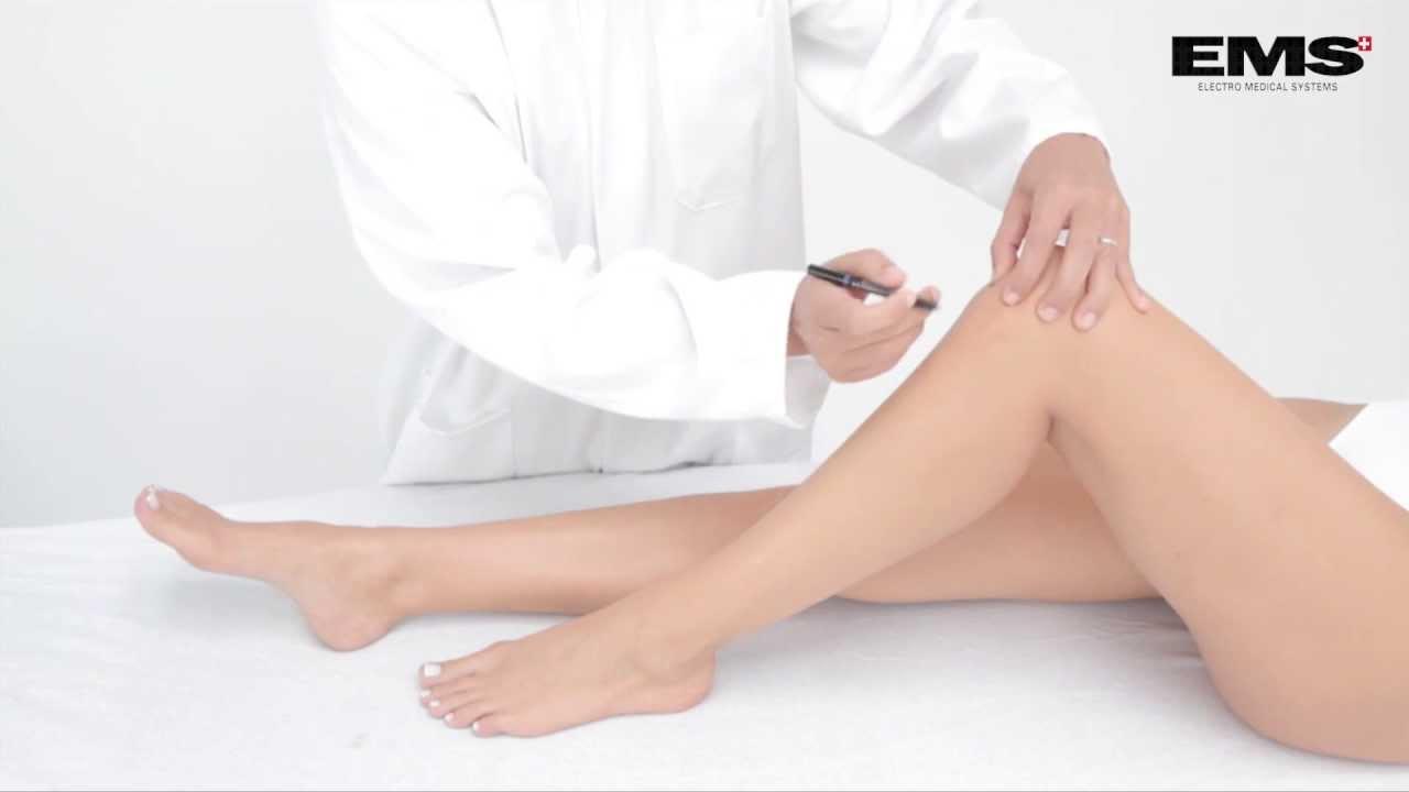 a csípőízületek fájó fájdalmainak oka amely segít az ízületi fájdalmaktól
