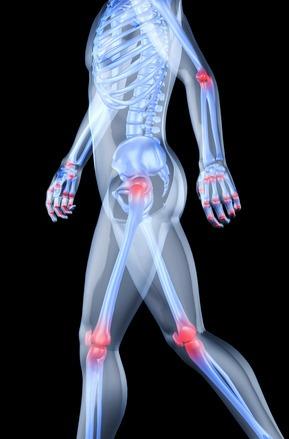 artrózisos kezeléssel méhnyakos osteochondrozis kenőcs