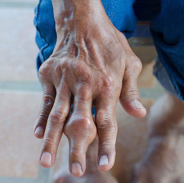 köszvényes artritisz boka tünetei