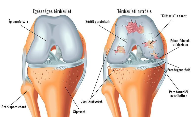 A térdízület anatómiája és biomechanikája - Súlypont Ízületklinika - Térdízület felépítése