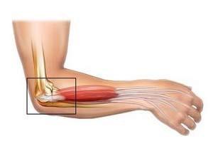 könyök-váll fájdalom boka osteoarthritis műtéti kezelése