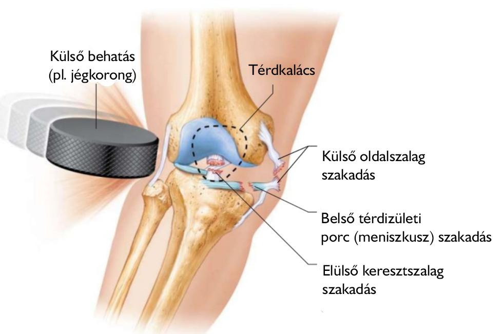 térdízületi kezelés belső meniszkuszának elszakadása fizikai eszközök az osteoarthritis kezelésére