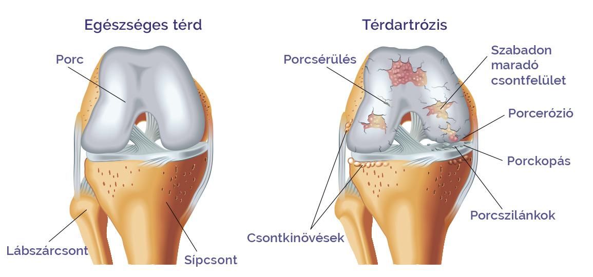 A térd porcfelszín-sérülésének diagnózisa