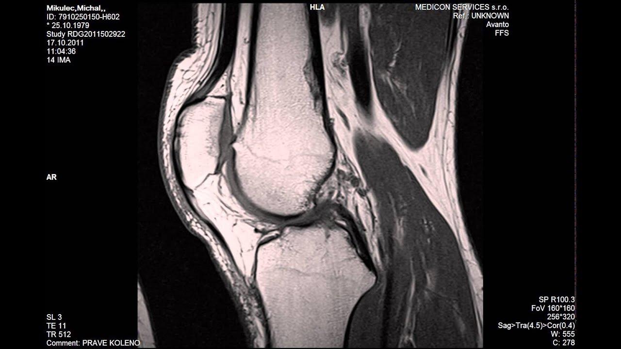 A nyaki osteochondrosis kezelése otthon Kenőcsök vagy krémek nyaki osteochondrozishoz