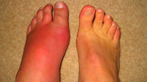 mit kell tenni, hogy a lábak ízületei ne szenvedjenek